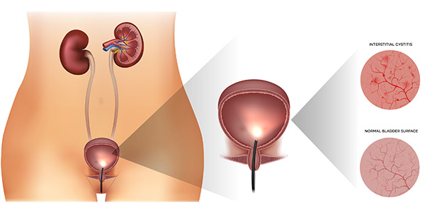 Interstitial Cystitis is NOT always a urinary tract