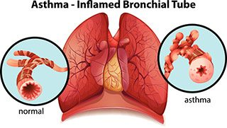 An-asthma-inflamed-bronchial-tube