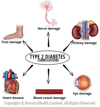 Type 2 Diabetes Complications